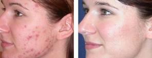 acne13