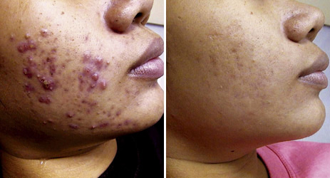 acne_before_after_pictures_1
