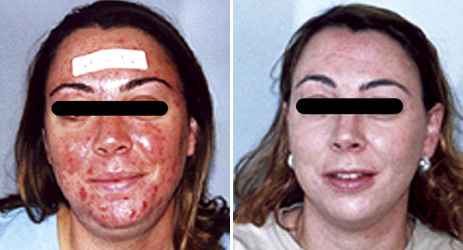 acne_before_after_pictures_2