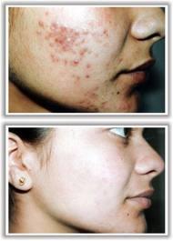laser-acne-2
