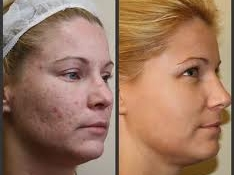 acne10