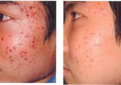 acne11