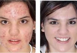 acne12