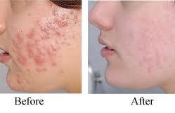 acne14