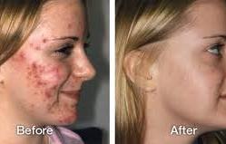 acne7