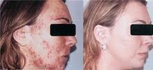 laser-acne-3