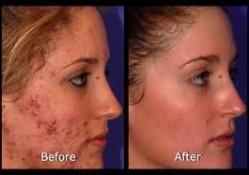 laser-acne-4
