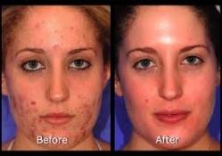 laser-acne-5