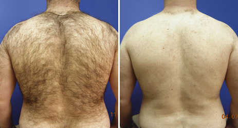 hair_removal_back_picture_2