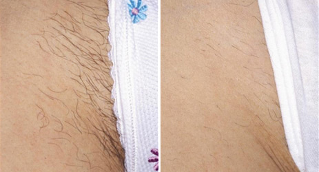 hair_removal_bikini_before_after_picture_1
