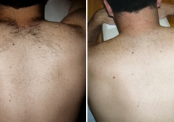 hair_removal_before_after_pictures_1