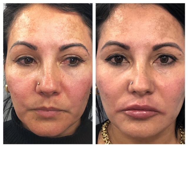 Lip Filler - Before & After