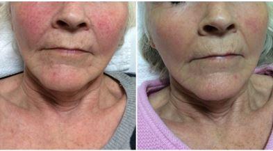 rosacea-results