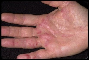 eczema-word-press-image-300x204