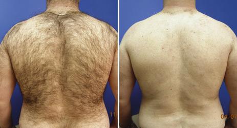Bradford laser hair removal