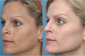 Bradford facial rejuvenation