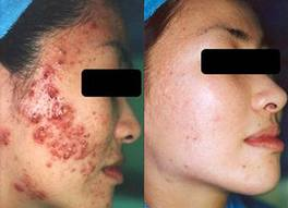 Laser Acne Clearance
