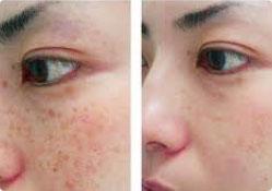 pigmented lesion