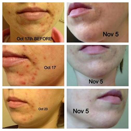 Zyderma Before & After