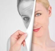 Laser Anti-Aging