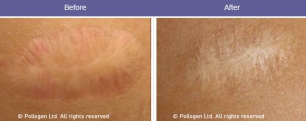 TriFractional Before and After