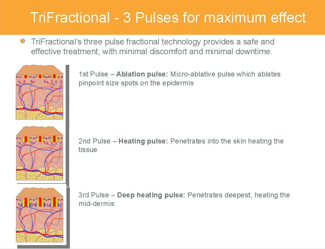 TriFractional