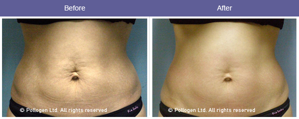Before and After Tummy Fat Reduction