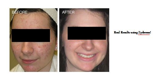 results using zyderma