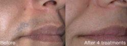 Mediostar laser hair removal